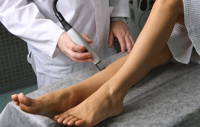 Анализы крови при варикозе нижних конечностей