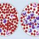 Сколько живут (продолжительность жизни) с хроническим В-клеточным лимфолейкозом (лимфоцитарным)