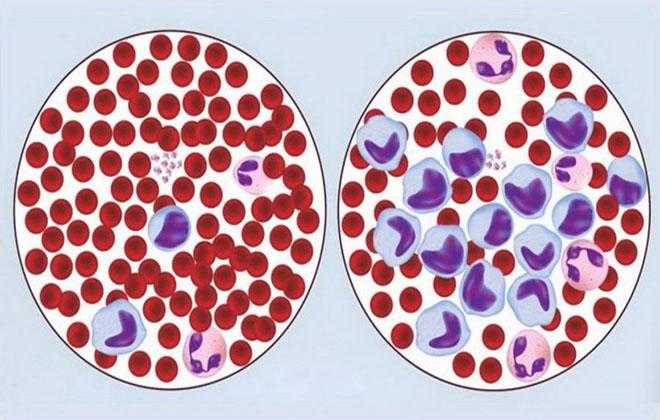 Хронический лимфоцитарный лейкоз прогноз жизни у взрослых