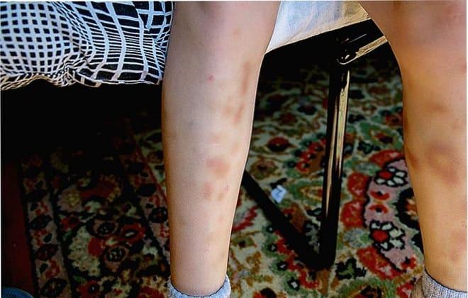 На ногах синяки