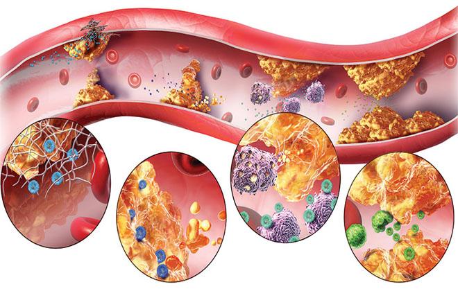 Наличие атеросклероза