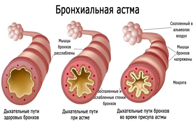 Наличие бронхиальной астмы
