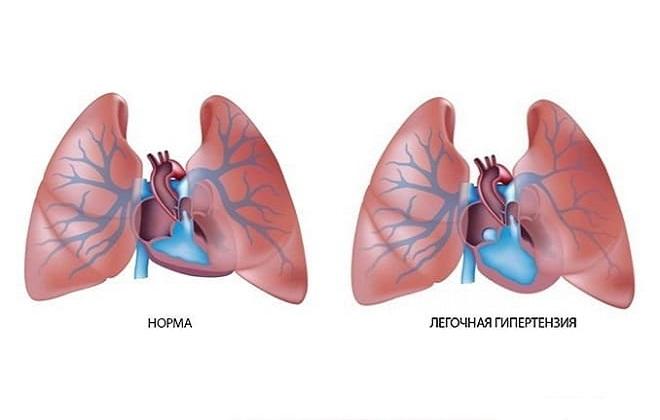 Норма и повышение давления в русле легочной артерии