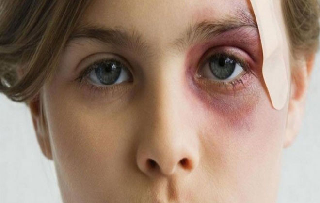 Образование синяков на лице
