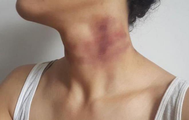 Один из симптомов миелоидной формы недуга