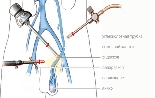 Операция Иваниссевича