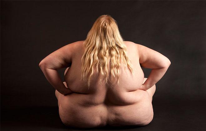 Ожирение женщины