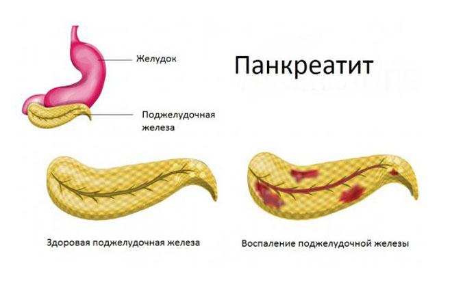 Панкреатит болезнь