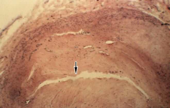Поражение венечных артерий