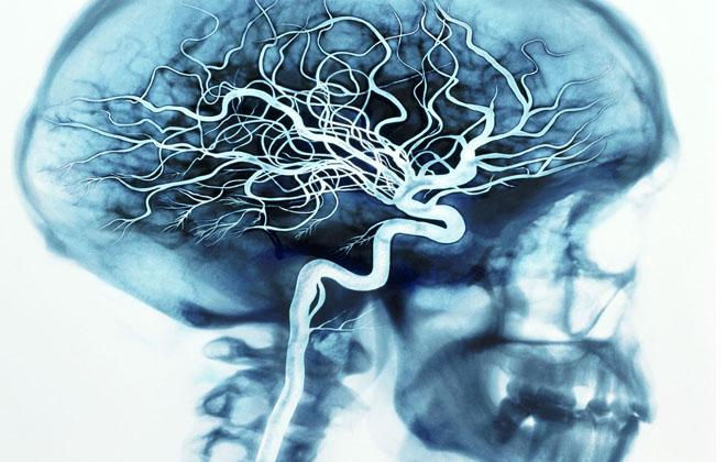 Поражения сосудов головного мозга