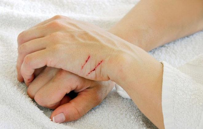 Поверхностный порез