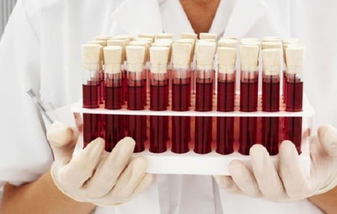 Распространенный четвертый тип крови