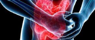 Развитие заболевания кишечника
