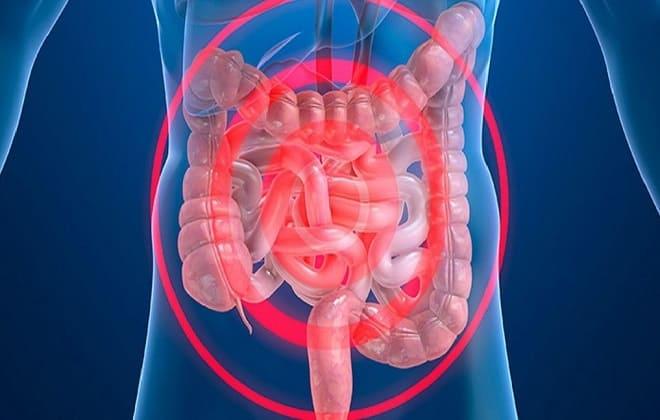 Сгусток крови в кишечнике