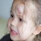 Что делать если у ребенка после падения появилась гематома (синяк) на лбу