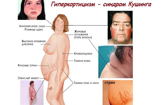 Синдром Иценко-Кушинга