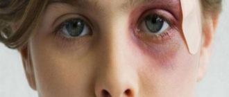 Синяк под глазом у девушки