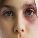 Эффективное средство от гематом на лице после удара (ушиба) и чем быстро убрать (вылечить) синяк возле века