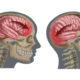 Как лечить внутреннюю (подкожную) гематому головного мозга после удара (ушиба) и ее симптомы