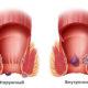 Как лечить острый тромбоз наружного (внешнего) геморроидального узла (вен) в домашних условиях и быстро ли проходит тромбофлебит заднего прохода (прямой кишки)