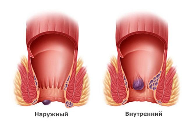Внешний геморрой с тромбозом
