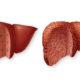 Кровотечение из пищевода при циррозе печени (печеночное) и какие его симптомы
