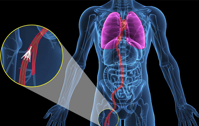 Тромбоз глубоких вен симптомы и лечение