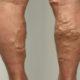 Как лечить заболевание вен на ногах у мужчин и какие симптомы варикозного расширения сосудов нижних конечностей