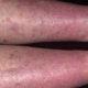 Как и чем лечить варикозный дерматит (варикоз) нижних конечностей и его симптомы