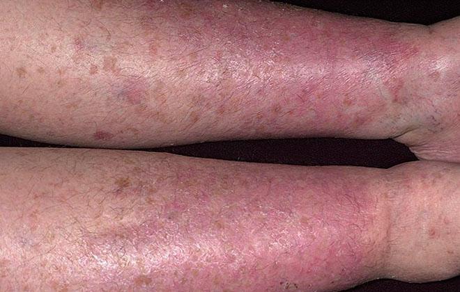 Варикозный дерматит нижних конечностей: лечение и симптомы