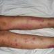 Как лечить геморрагический васкулит у детей и его симптомы