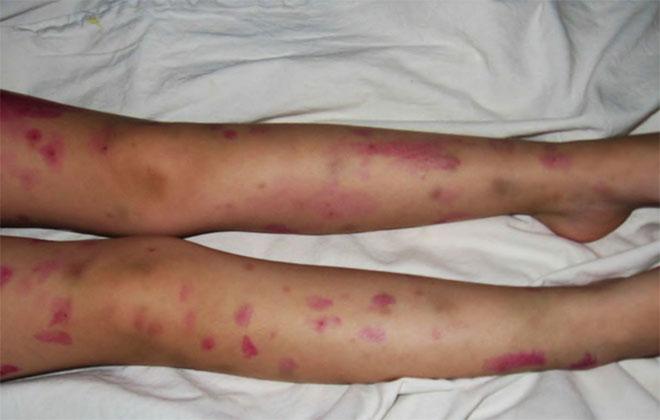 Васкулит у ребенка на ногах
