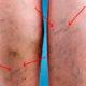 Как лечить варикозное расширение вен (варикоз) нижних конечностей (ног) народными средствами в домашних условиях