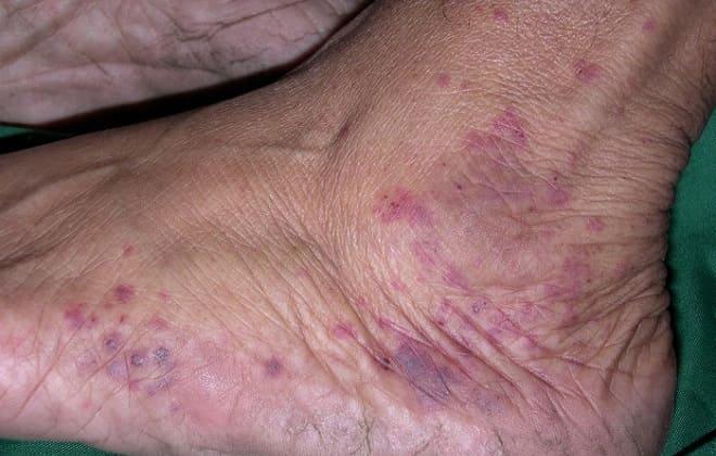 Влияние васкулита на эпидермальный слой