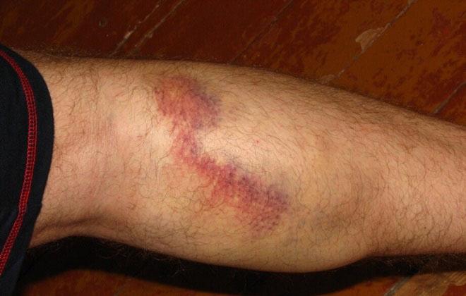 Удаление вены на ноге послеоперационный период