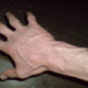 Может ли быть варикозное расширение вен (варикоз) верхних конечностей (рук) и как лечится