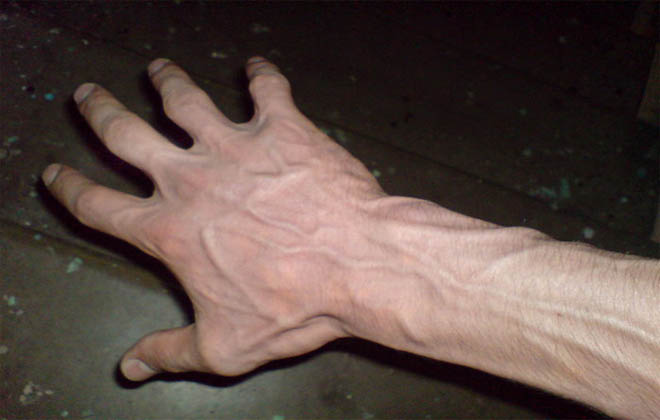 Заболевание на руках