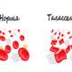 Как лечится болезнь талассемия и какие симптомы заболевания у взрослых и детей
