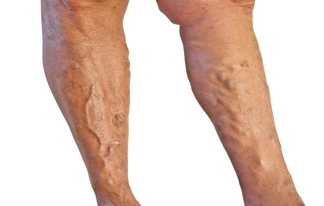 Заболевание вен ног