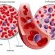 Сколько живут люди с лейкемией (лейкозом крови) и какой прогноз на продолжительность жизни при белокровии