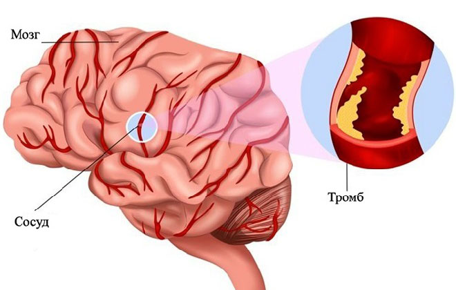 Атеротромботическое поражение сосудов мозга
