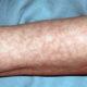 Почему появляется мраморная кожа на руках у новорожденного ребенка (грудничка) и взрослых при температуре