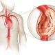 Почему может быть разрыв (расслоение) аорты сердца