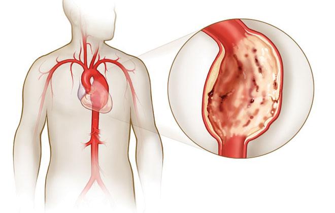 Болезнь аорты