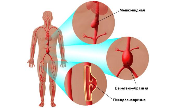 Расслоение стенок аорты симптомы причины лечение операция прогноз
