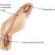 Как лечить аневризму (расширение) бедренной артерии и ее симптомы