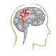 Как лечить сосудистую дисциркуляторную энцефалопатию (ДЭП) головного мозга и какие симптомы проявления