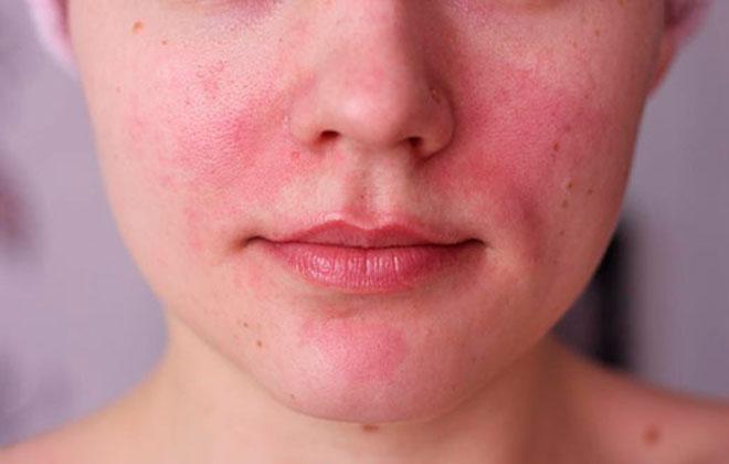 Болезнь кожи лица