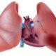 Как лечить аневризму легочной артерии (легких) и ее симптомы