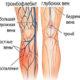 Как лечить посттромбофлебитический синдром нижних конечностей